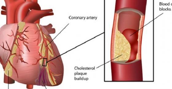 Сочувајте ги срцето  мозокот и бубрезите   со само три состојки исчистете ги артериите
